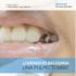 La pulpectomía VS la pulpotomía