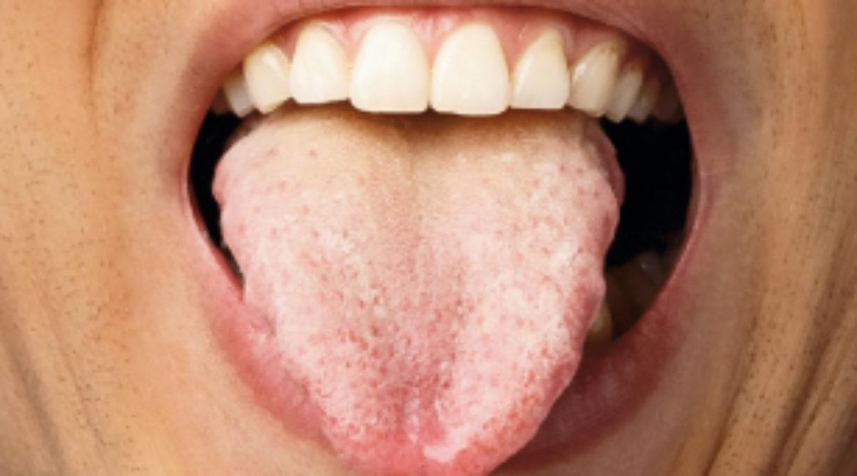 ¿Sabes lo que es la candidosis bucal?
