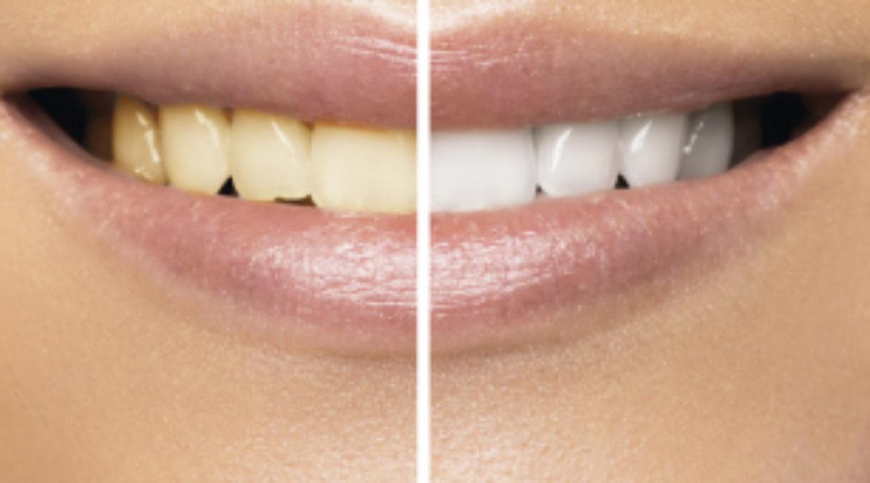 ¡Empieza y termina el día con una sonrisa gracias a la estética dental!