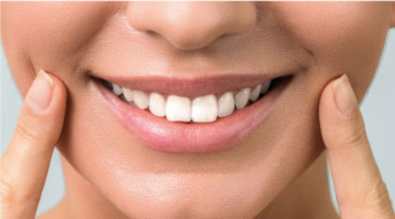 Si buscas la felicidad, invierte en una sonrisa permanente