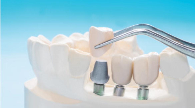 ¿Qué sabemos y qué no sabemos sobre los Implantes dentales?