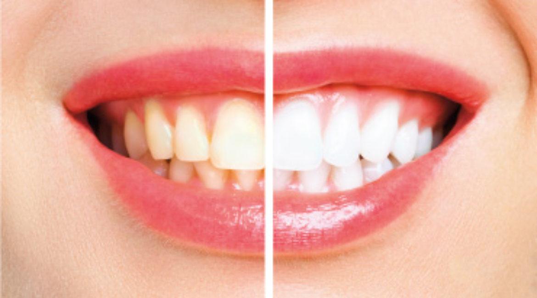 Tonalidades de color dental
