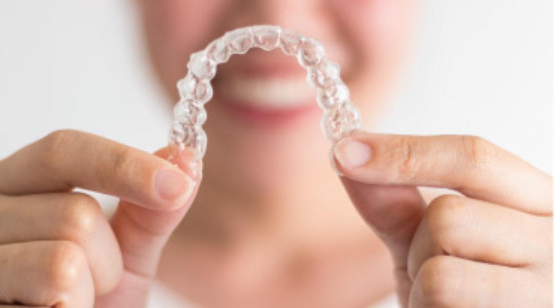 La importancia de una sonrisa alineada (ortodoncia invisible)