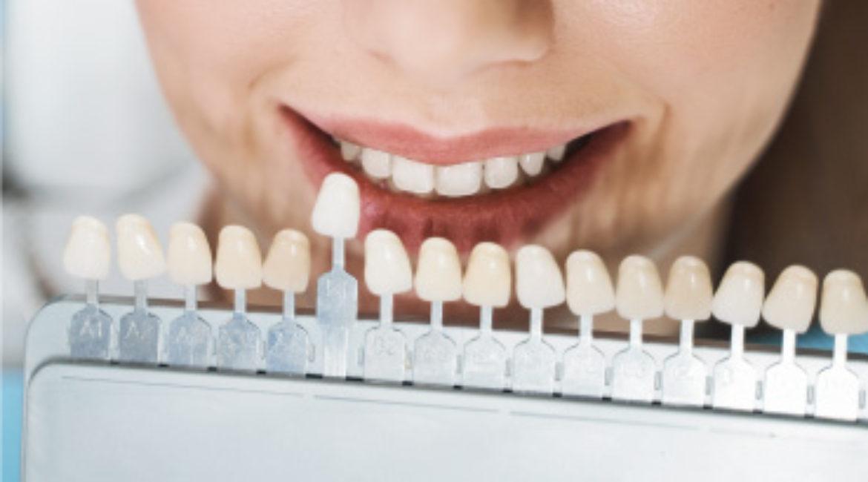 Dientes blancos y brillantes en Clemente Clínica Dental